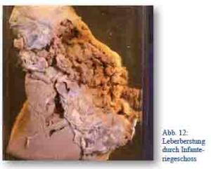 Die Merkmale 4 Stadien der Hämorrhoide